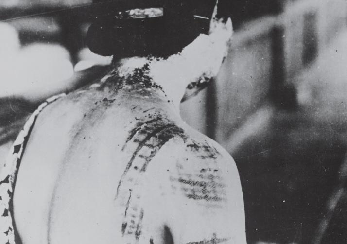 原爆の被害者(広島)