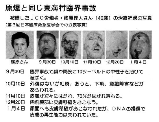 東海村臨界事故被害者