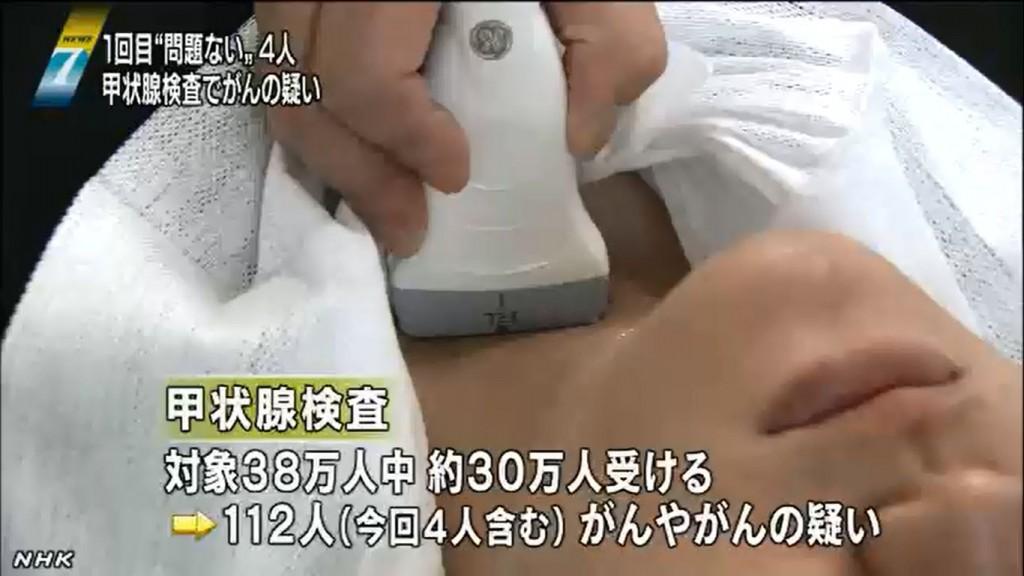 甲状腺検査ニュース画像